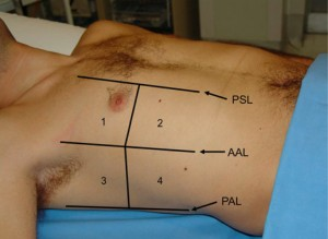 Figure 2 - Volpicelli lung fields (from the international guidelines article)