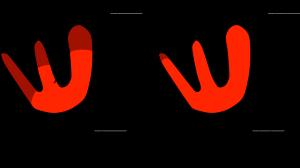 Figure 4: Cardiac depolarization with a blocked LASF, part 2