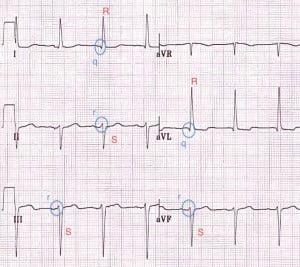 Figure 5: LASFB ECG pattern[2]