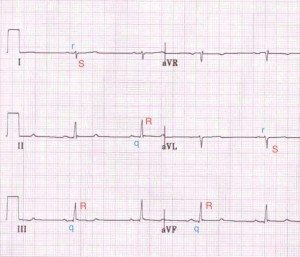 Figure 8: LPIFB ECG pattern[5]