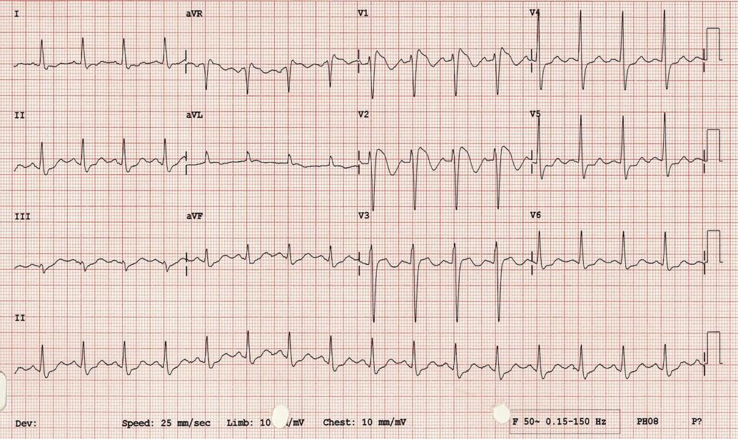 Medical Concept: ECGs in Syncope - CanadiEM