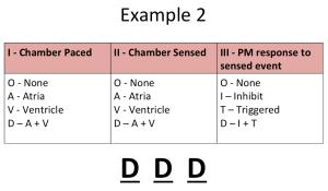 DDD Pacemaker