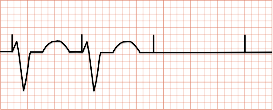 Pacemaker Essentials How To Interpret A Pacemaker Ecg