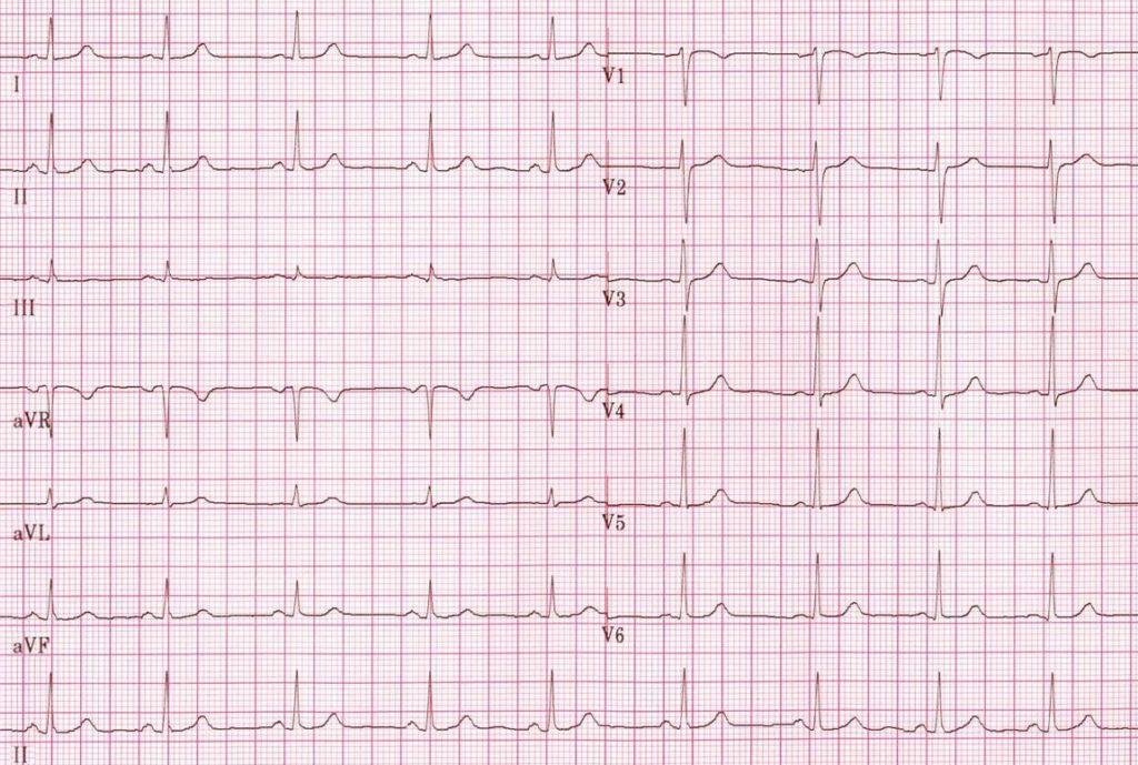 Non paced ECG