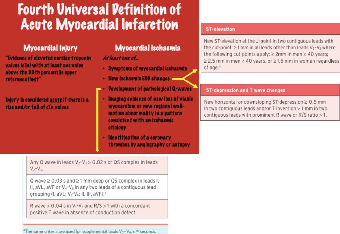 Fourth Universal Definition of MI