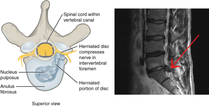 corticosteroids in radicular back pain